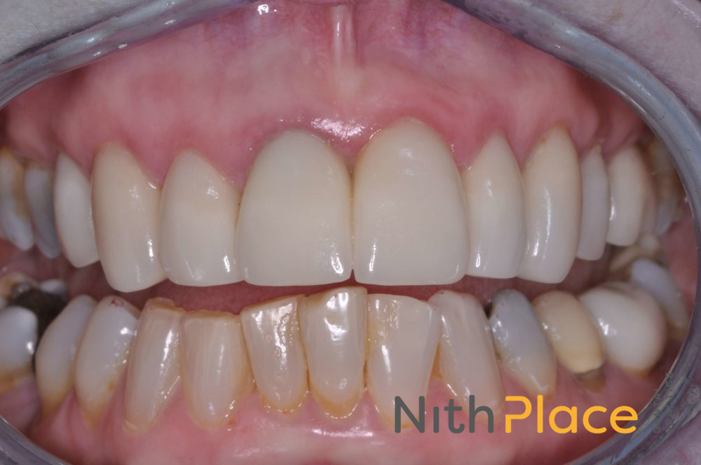After - Patient was delighted with combination of Tooth Whitening, Porcelain veneers and E-max crowns.