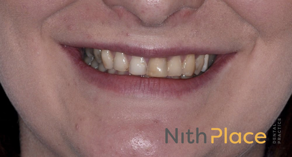 Before - Patient was unhappy with the shape, colour and alignment of her upper front teeth and wanting to improve the appearance before her wedding.