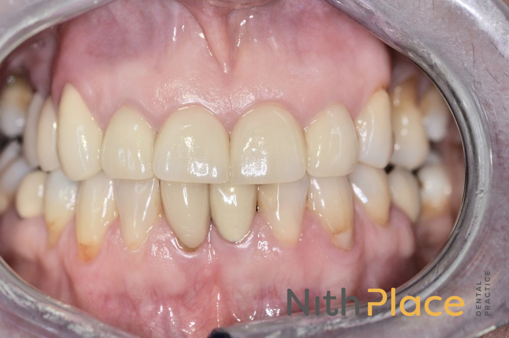 After - We replaced the crowns with some great, natural looking E-max crowns