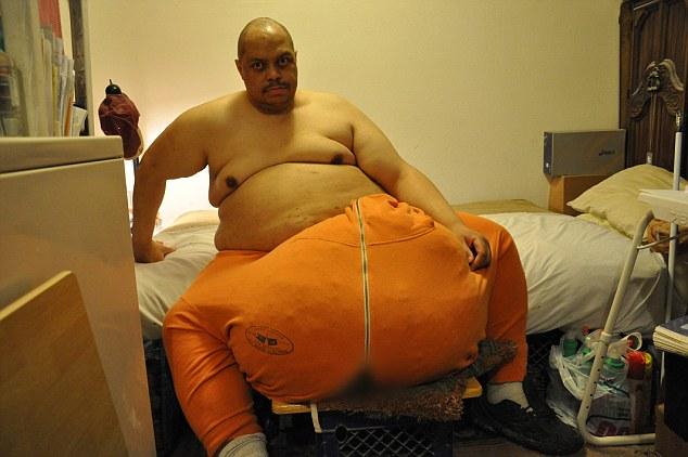Huge testicle