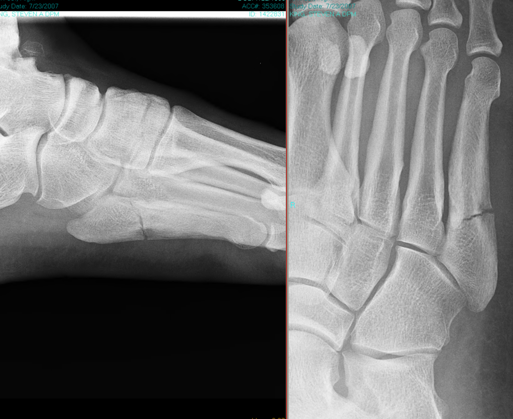 "Dr. King suffered this 5th Metatarsal Jone's fracture while playing competitive adult recreational sports.  Surgery was considered (a 6.5 canulated screw up the bone shaft)  but ultimately was not needed when the new advanced Kingetics orthotic system helped heal and protect his broken foot.  Dr. King used this setback as a spring board to become Co-Principle Investigator for Small Business Innovation Research contract # A11-109, ""Advanced Composite Insoles for the Reduction of Stress Fractures,"" sponsored and funded by the United States Department of Defense and Army Medical Research and Materials Command.  The boot-orthotic they produced from this research resulted in a reduction of combat boot weight by 30% , improvement against puncture by 300-1000%, and would not start on fire with horizontal and vertical flame testing. The Department of Defense responded in a rejection letter afterward stating ""There is limited commercial potential for this application in the military."" There has been no further ""government"" funded research since."