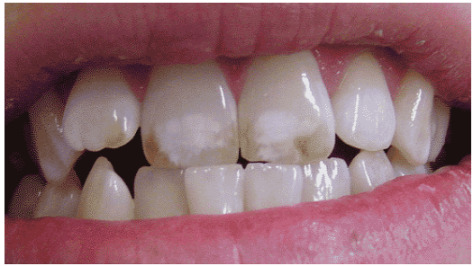 Photo by Hardy Limeback, DDS, PhD.png