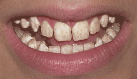 Photograph by Dr. Hardy Limeback, DDS, PhD.png