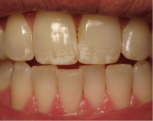 Photograph by the Center for Natural Dentistry.png