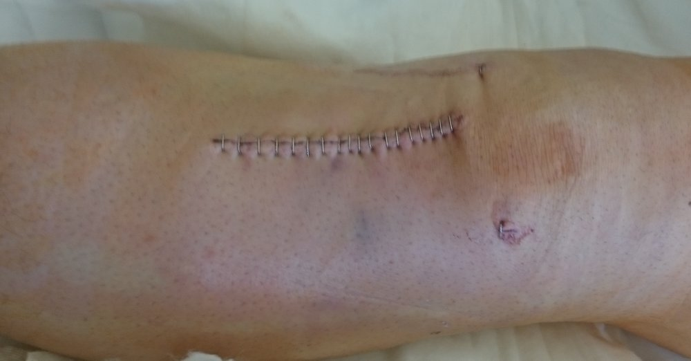 This is how the knee and just under the knee looked the day after the surgery.