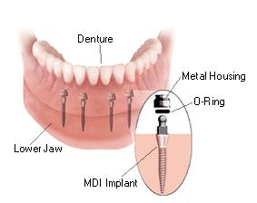 Custom Dentures In Indianapolis Made Just For You Indianapolis