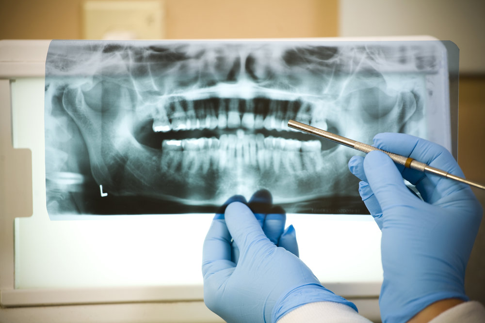 "<a href=""/root-canals"">Endodontic Surgery</a>"