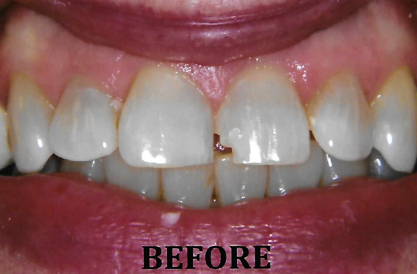 Anterior_Porcelain_Crown_3BEFORE.png