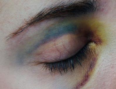 helatomic-bruises.png