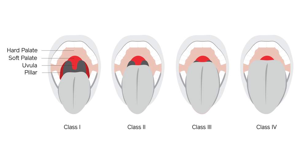 Airway001-V2.png