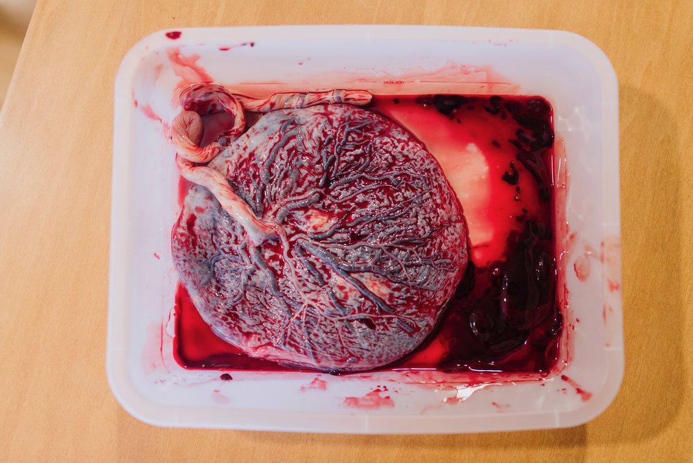 beaufitul-picture-placenta.jpg
