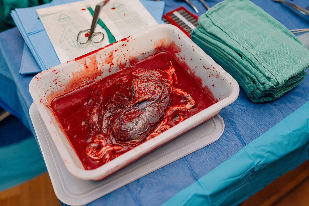 placenta-afterbirth-austin.jpg