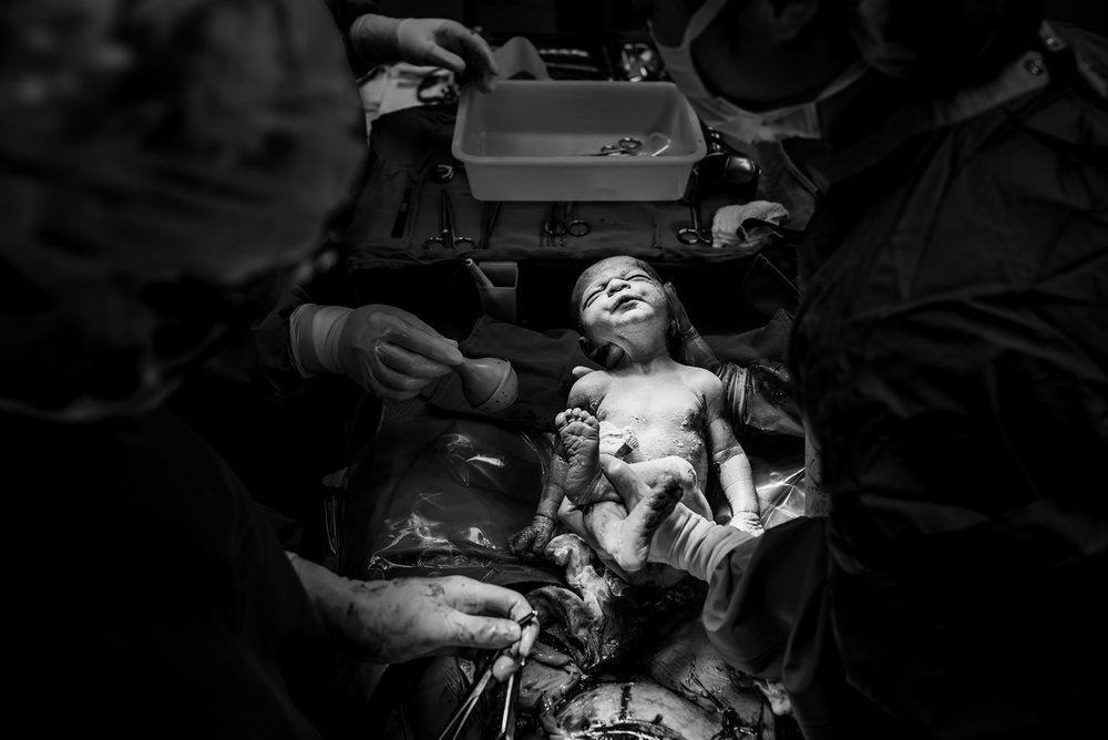 cesarean birth photography