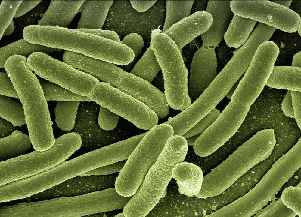 koli-bacteria-123081_1280.jpg