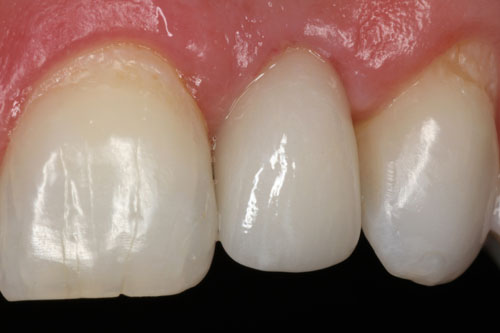 Anterior-Implant_Case-3_After.jpeg
