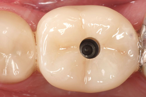 Posterior-Implant-Screw-Retained_Case-1_In-Progress.jpeg