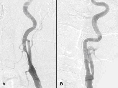 Angiogram Cath Image