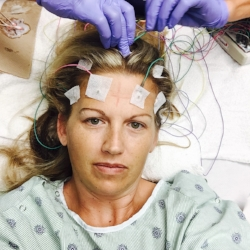This is me getting brain mapped with electrodes while in ICU.