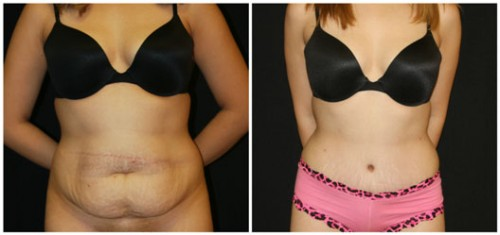 Abdominoplasty San Francisco