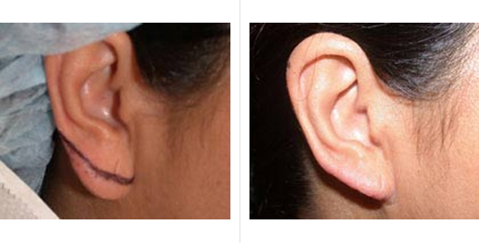 earlobe_repair_reduction_6.jpg