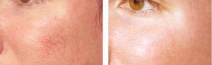 face-veins2-300x93.jpg