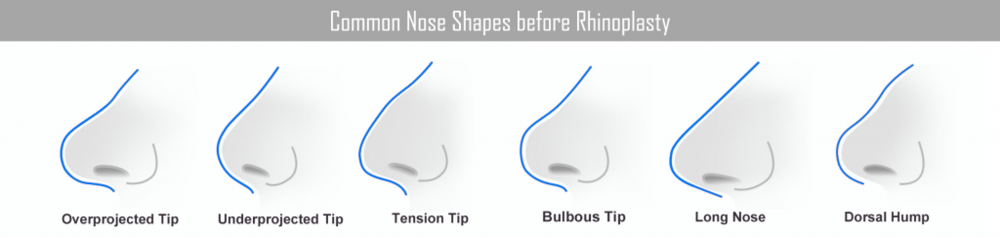 nose shapes rhinoplasty
