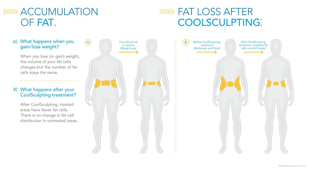 Accumulation-of-Fat-Fat-Loss-After-CoolSculpting1.jpg