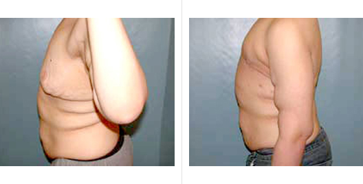 surgery weight loss_ba_5.jpg