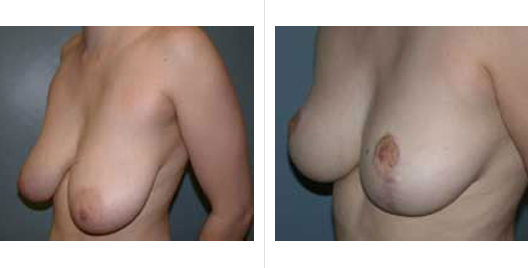 breast reduction_ba_2.jpg