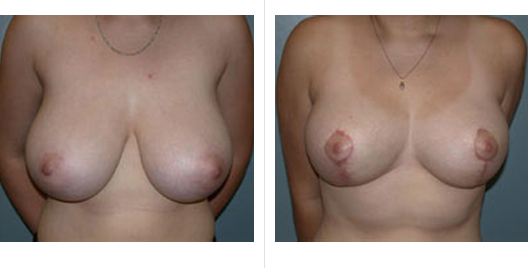 breast reduction_ba_3.jpg