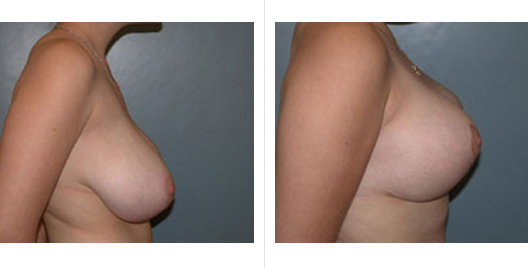 breast reduction_ba_4.jpg