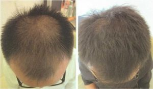 laser_cap_before-after1-300x175.jpg