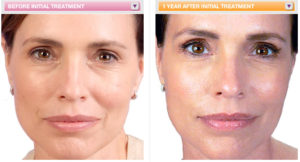 juvederm ultra face filler
