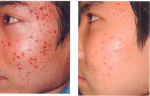acne_1-300x193.jpg