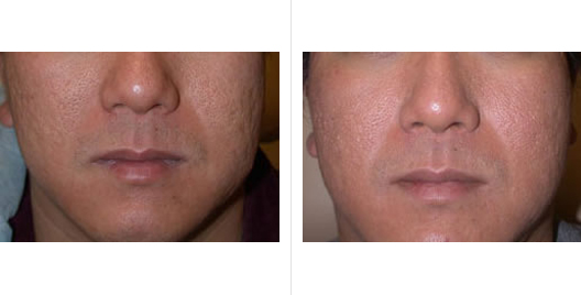 laser skin resurfacing_ba_1.jpg