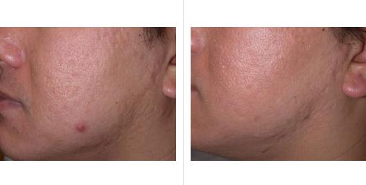 laser skin resurfacing_ba_2.jpg