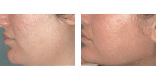 laser skin resurfacing_ba_4.jpg