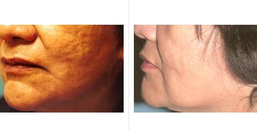 laser skin resurfacing_ba_5.jpg