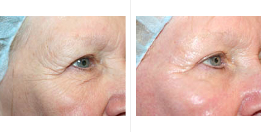 laser skin resurfacing_ba_8.jpg