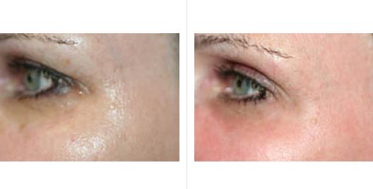 laser skin resurfacing_ba_11.jpg