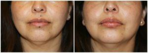 Lip Mole Removal Before and After