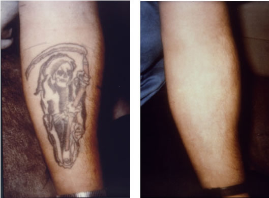 tattoo removal san francisco plastic surgery and laser