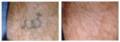 Tattoo Removal | Usha Rajagopal, MD