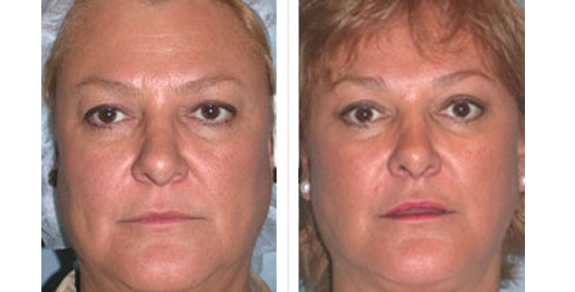 face lift_beforeafter_1.jpg