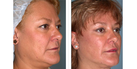 face lift_beforeafter_3.jpg