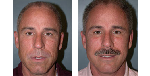 face lift_beforeafter_5.jpg