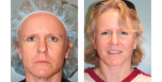 face lift_beforeafter_7.jpg
