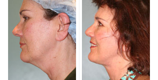 face lift_beforeafter_12.jpg