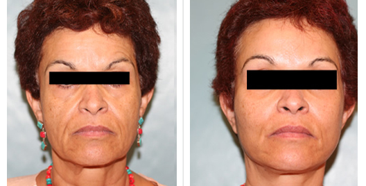 cheek lift_ba_2.jpg