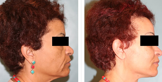 cheek lift_ba_4.jpg